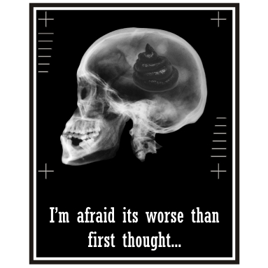 Yep, that's the brain all right...